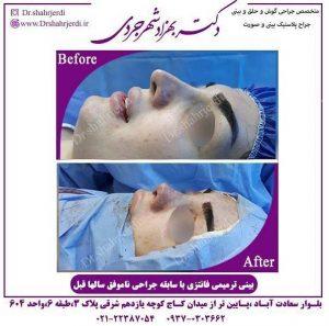 جراحی بینی ترمیمی 2