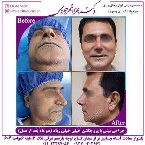 جراحی بینی کج