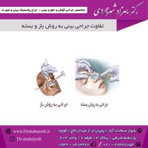 تفاوت جراحی بینی به روش باز و بسته