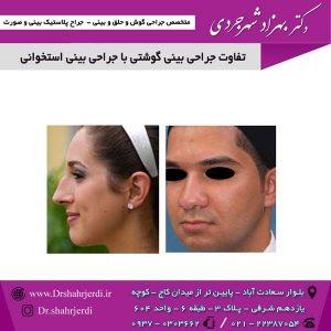 تفاوت جراحی بینی گوشتی با جراحی بینی استخوانی