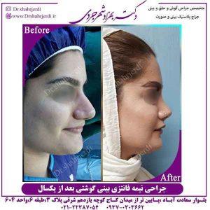 تفاوت جراحی بینی طبیعی و فانتزی