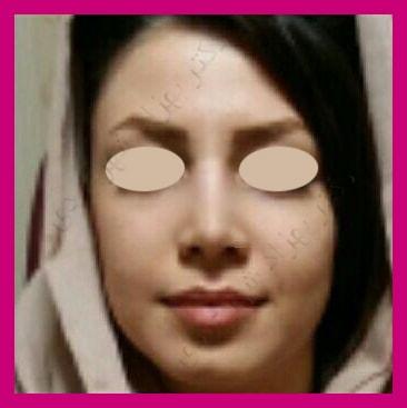 After-جراحی بینی