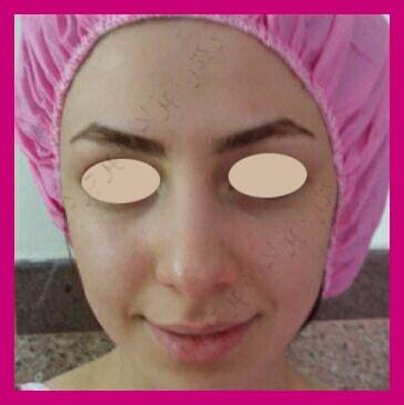 Before-جراحی بینی