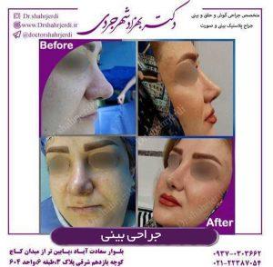 بهترین جراح بینی در تهران 3