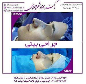 بهترین جراح بینی در تهران2