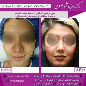 جراح بینی ترمیمی در تهران