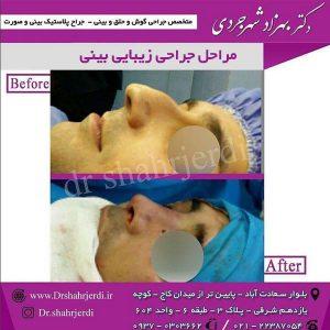 مراحل جراحی زیبایی بینی