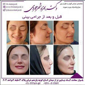 قبل و بعد از جراحی بینی