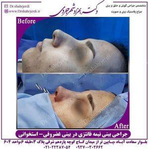 جراحی بینی در زنان