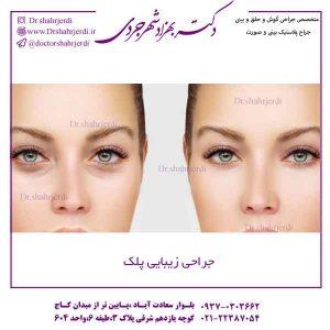 جراحی زیبایی پلک در تهران