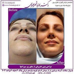 بهترین دکتر عمل بینی در تهران