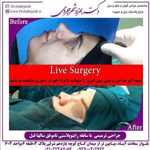 دکتر ترمیمی بینی خوب در تهران