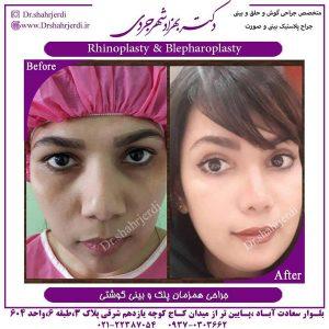 جراحی پلاستیک بینی