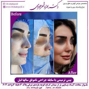بینی-ترمیمی-با-سابقه-جراحی-ناموفق-3