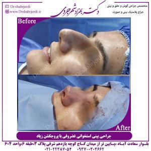 جراحی-بینی-استخوانی-2