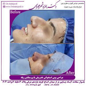 جراحی-بینی-استخوانی-3