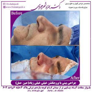 جراحی-بینی-با-پروجکشن-زیاد-حین-عمل