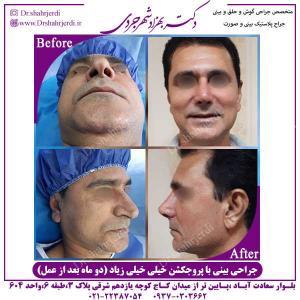 جراحی-بینی-با-پروجکشن-زیاد-1