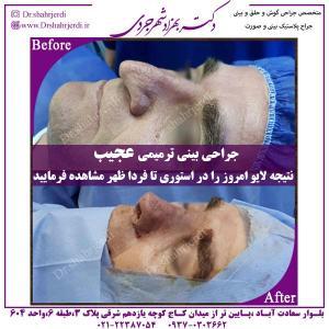 جراحی-بینی-ترمیمی-1