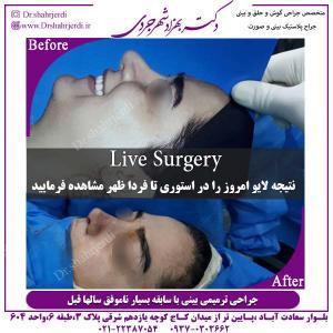 جراحی-بینی-ترمیمی-3