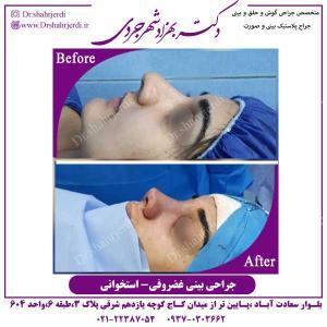 جراحی-بینی-غضروفی-استخوانی