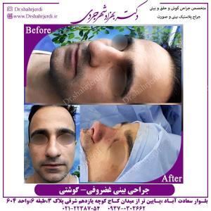 جراحی-بینی-غضروفی-گوشتی