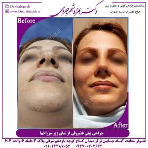 جراحی-بینی-غضروفی-1