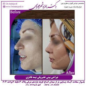جراحی-بینی-غضروفی-5