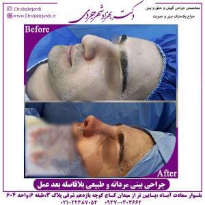 جراحی-بینی-مردانه-و-طبیعی