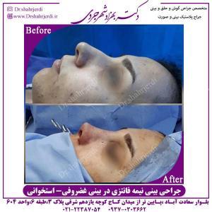 جراحی-بینی-نیمه-فانتزی-در-بینی-غضروفی-استخوانی
