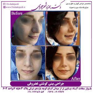 جراحی-بینی-گشتی-غضروفی-1