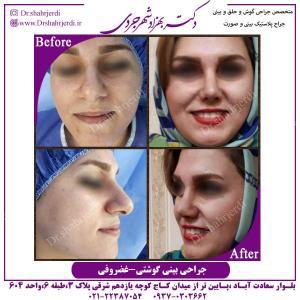 جراحی-بینی-گوشتی-غضروفی-1