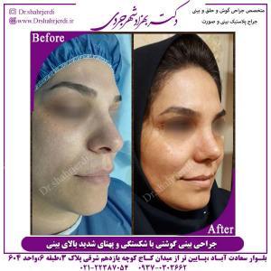جراحی-بینی-گوشتی-2