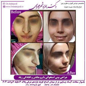 جراحی-بینی-37