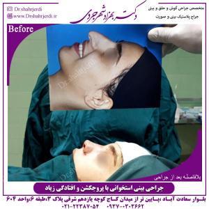 جراحی-بینی-39