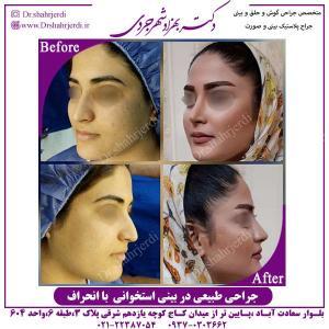 جراحی-طبیعی-در-بینی-استخوانی-با-انحراف-2
