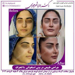 جراحی-طبیعی-در-بینی-استخوانی-با-انحراف