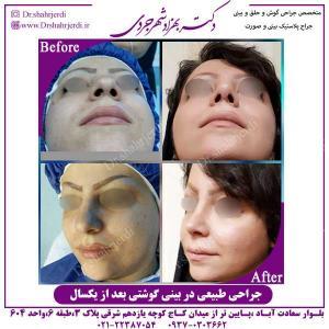 جراحی-طبیعی-در-بینی-گوشتی-2