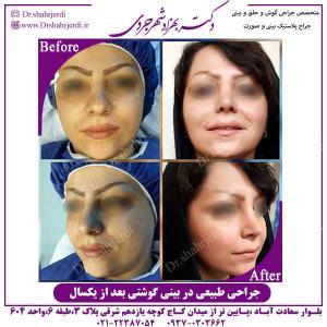 جراحی-طبیعی-در-بینی-گوشتی