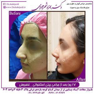 جراحی بینی استخوانی غضروفی 1