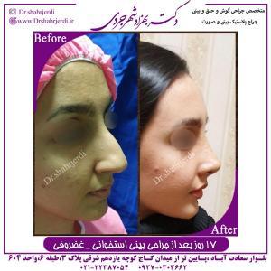 جراحی بینی استخوانی غضروفی 2
