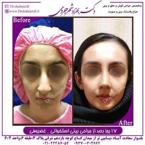 جراحی بینی استخوانی غضروفی 3