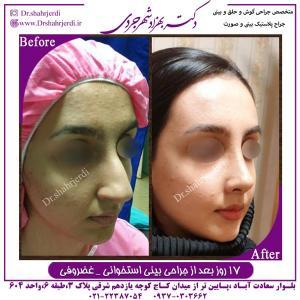 جراحی بینی استخوانی غضروفی 4