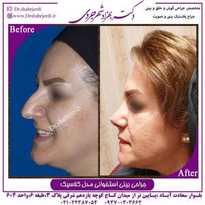 جراحی بینی استخوانی مدل کلاسیک 2