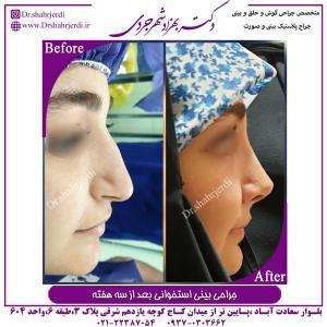 جراحی بینی استخوانی 11