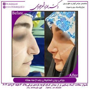 جراحی بینی استخوانی 13