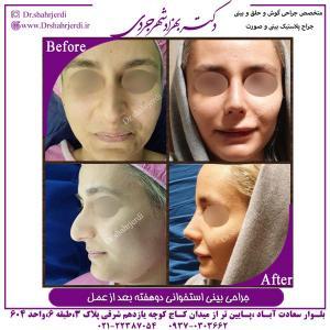 جراحی بینی استخوانی 6