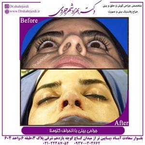 جراحی بینی با انحراف کلوملا 1