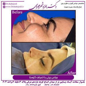 جراحی بینی با انحراف کلوملا 2