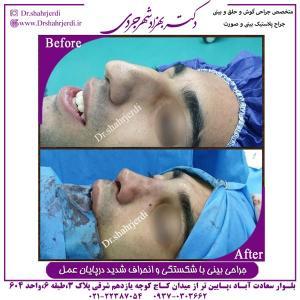 جراحی بینی با شکستگی و انحراف شدید 2